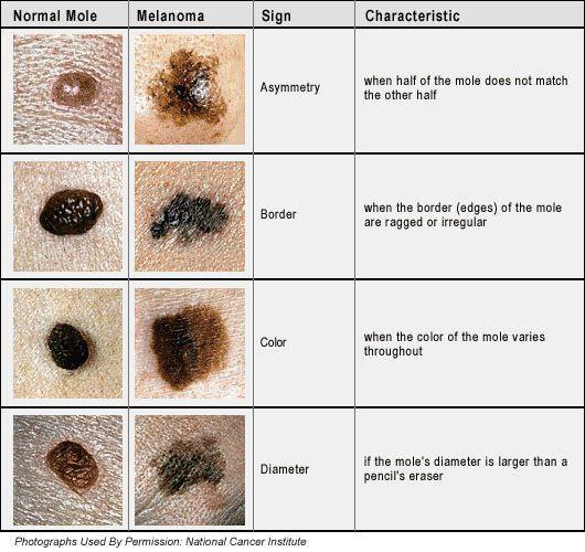 skin cancer pic national cancer institue