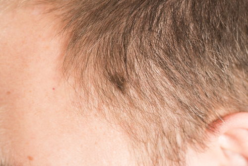 Hairdressers could be key to identifying Scalp and Neck Melanomas